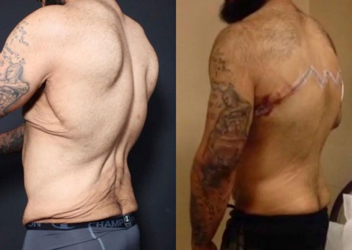 Pasquale Brocco had nearly 30 pounds of excess skin removed, he looks forward to looking and feeling great with his new physique he worked so hard to achieve.