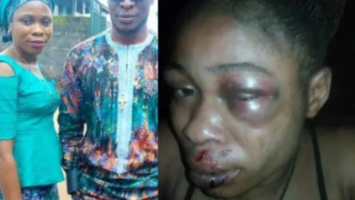 Photo of A Woman Beaten & brutalized by her husband for refusing to abort her 3-month-old pregnancy