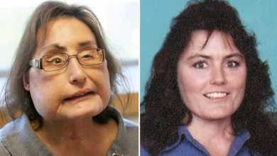 Photo of Ohio woman who received first US face transplant dead at 57