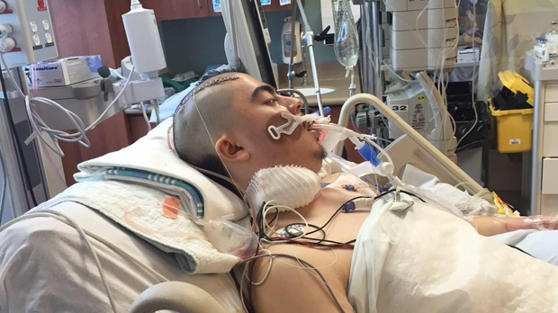 Winnipeg man on life support after tooth removal surgery