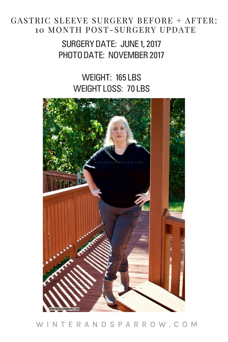 Gastric Sleeve Surgery Before and After: 10 Month Post-Surgery Update winterandsparrow.com