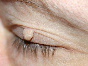 skin tag on eye lids