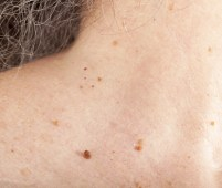 skin tags all over body
