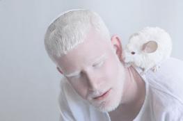 Yulia Taits revela la belleza natural de las personas albinas Captura-de-pantalla-2016-11-23-a-las-4.44.08-p.m.
