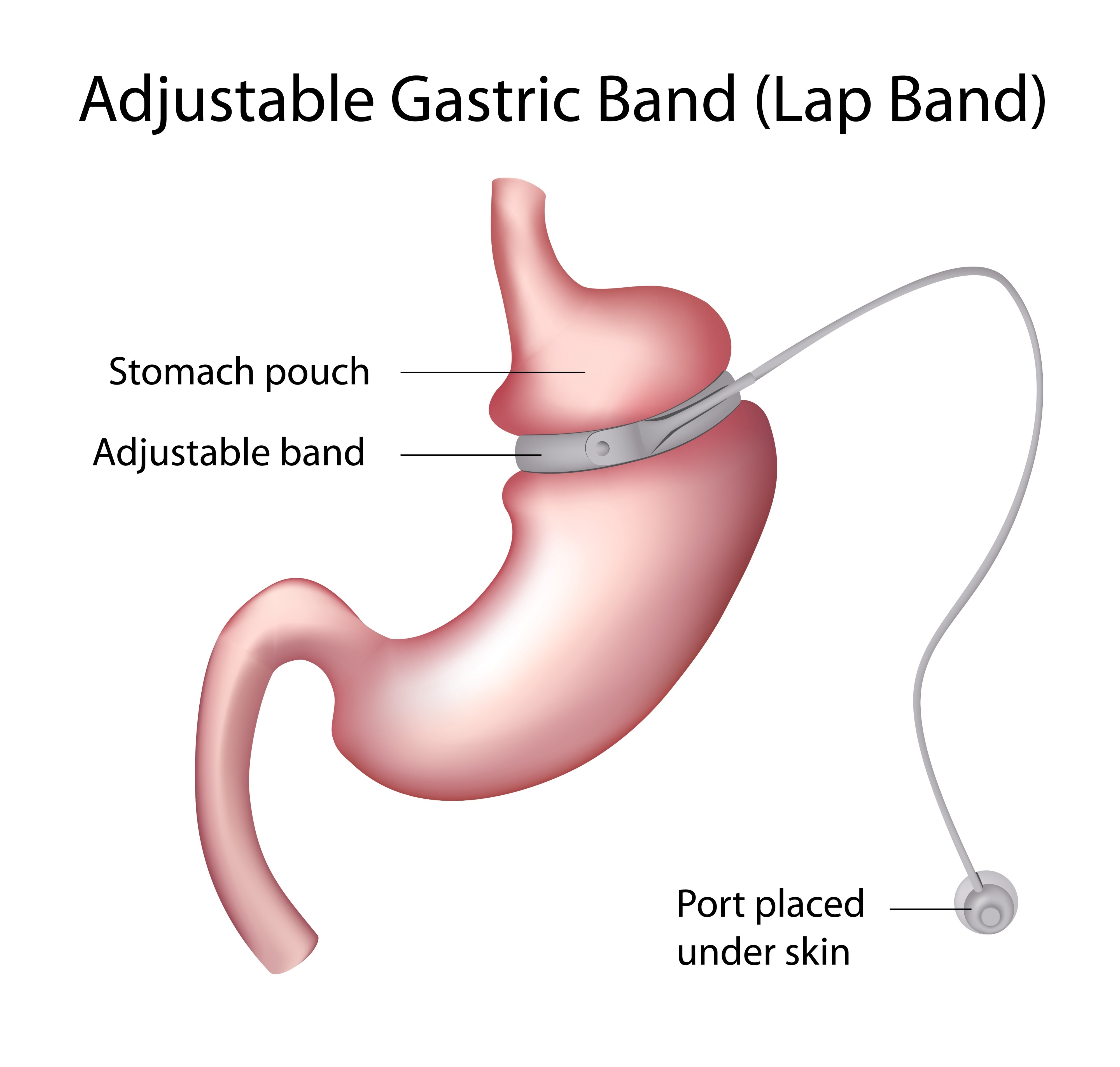 Gastric Band Removal