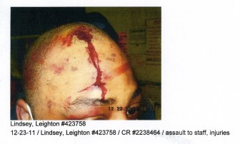 Inmate Leighton Lindsey admits biting a guard in 2011, but says he did so because the guard was holding him while another guard beat him. The photo, taken by authorities, was provided by Lindsey's lawyer, William Mayer.