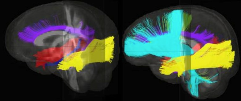 This image shows different fiber bundles in the brain that could be affected by early social neglect. Changes in these pathways may mean information moves less effectively through the brain, resulting in possible problems with memory, attention, visual and spacial skills, planning, thinking and many other 'higher-order' executive functions that children need to do well in school.