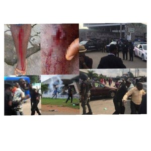 #RevolutionNow : Police Shoots, Harras, Arrests Protesters (Video)