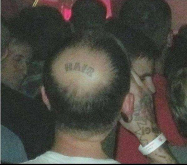 Hallado el remedio contra la alopecia.
