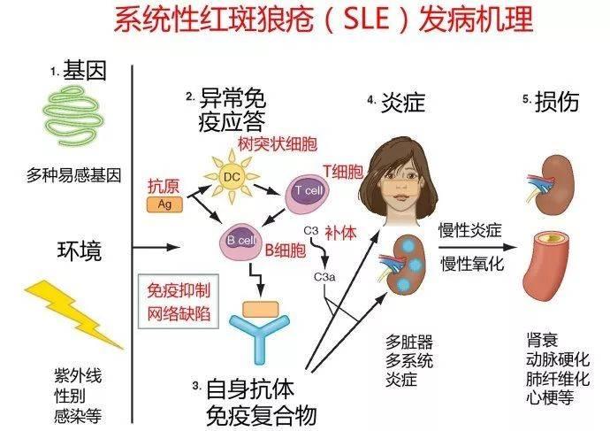 SOMADERM 凝膠成功調理系統性紅班狼瘡病例! – wise-somaderm blog