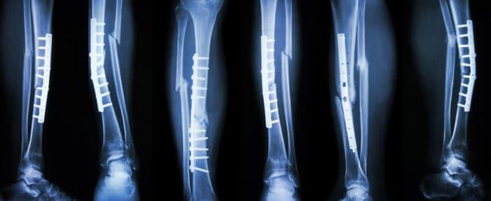 queens broken bones attorney