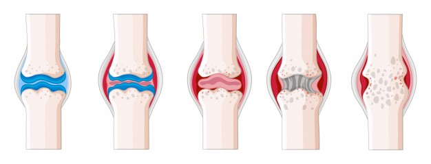 The progression and effect of  rheumatoid arthritis on joints of the body