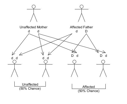 What is Factor V Leiden Genetic Mutation