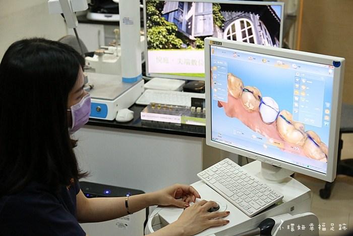 全瓷冠假牙,台北悅庭牙醫,台北牙醫,悅庭牙醫,牙套,牙醫推薦 @小環妞 幸福足跡