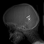 Cochlear Implant X ray (not author's own)