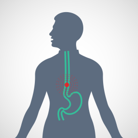 Diagram of a pain source in the human esophagus, illustrating GERD