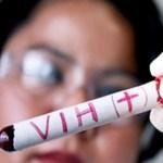 5.000 Fälle von Aids in 31 Jahren