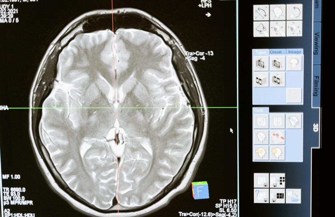 ESTUDIO: Esto pasa en nuestro cerebro poco antes de morir