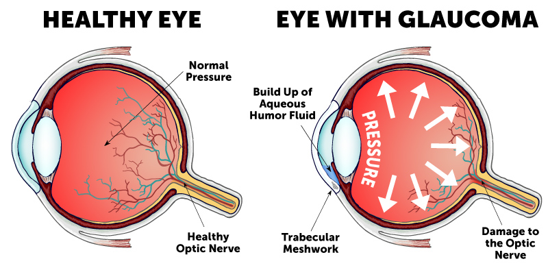 Types of Glaucoma | Wolfe Eye Clinic