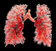 プラストミック - 肺の血管