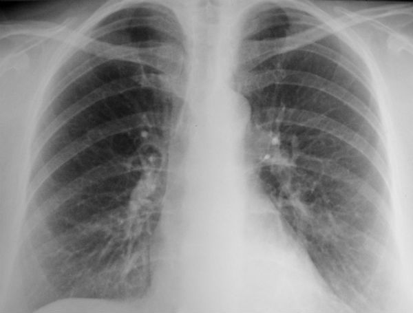 tüdőrák megnyilvánulása