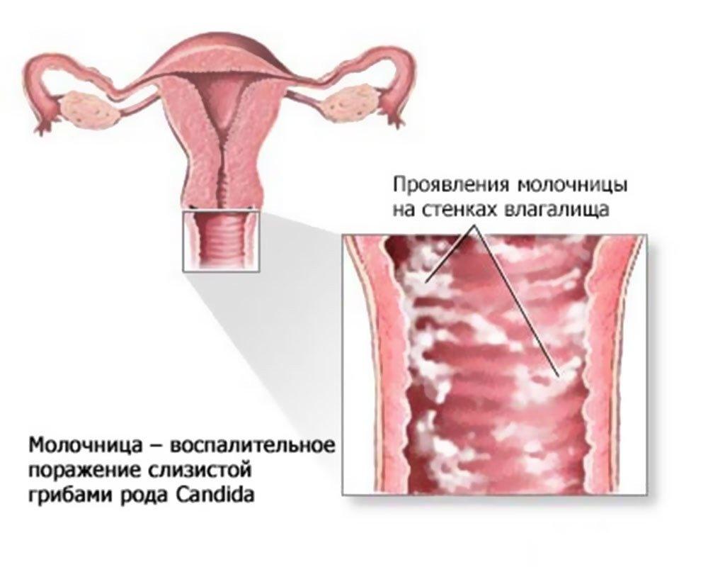 Выделения при беременности в третьем триместре фото. Выделения при беременности в третьем триместре