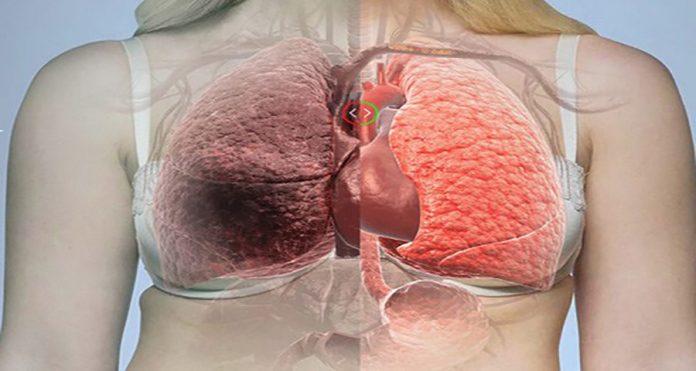 Они, наконец, обнаружили, что вызывает рак легких! Ты не поверишь, когда прочтешь, что это!