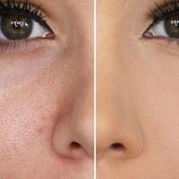 Πόροι στο πρόσωπο: Αντιμετώπιση με φυσικούς τρόπους ή το κατάλληλο μακιγιάζ