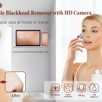 Time Siso Blackhead Remover