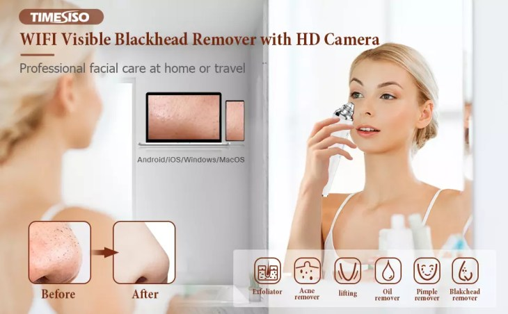 Time Siso Blackhead Remover