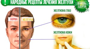 lecheniya-zheltuxi-narodnye-recepty