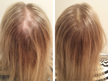 June Hair Before & After-GenF20 Plus