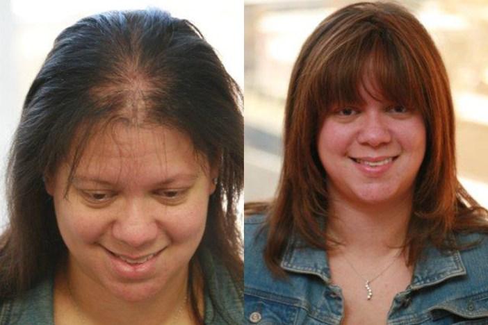 Hair Loss Treatment for Women-Sytropin