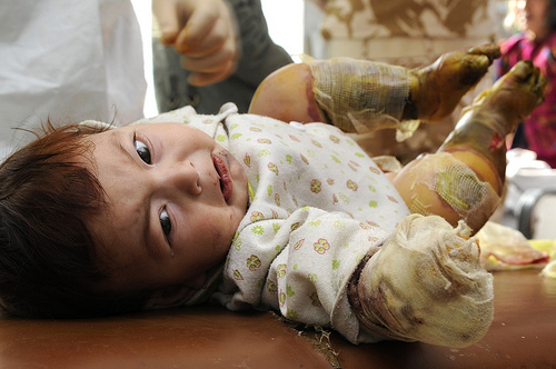 Afghan child burned and injured from contact with an improvised explosive device