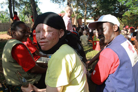 Extreme discrimination causes more albino deaths
