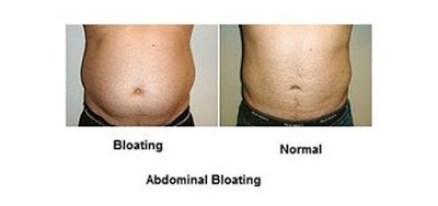bloating