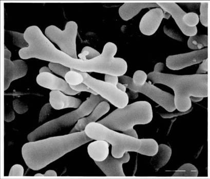 8-bifidobacterium-longum