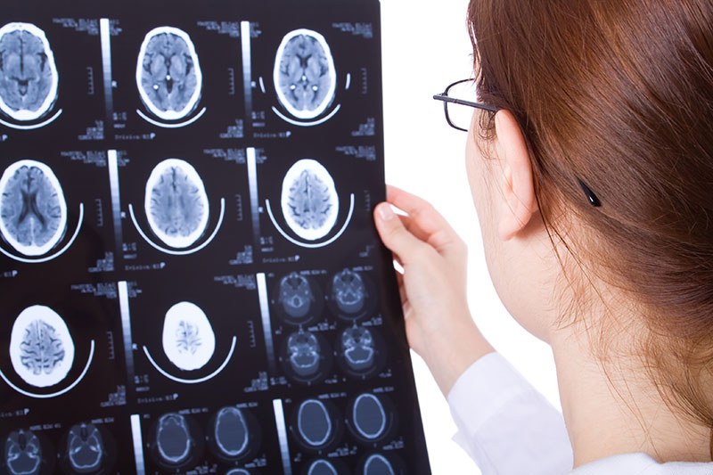 Brainwave Optimization And Menopause Symptoms