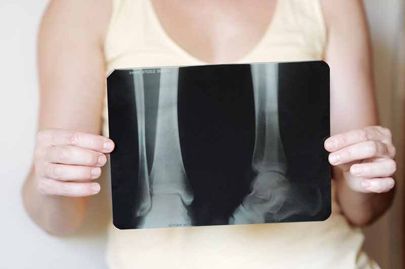 Osteoporosis: The Bane of the Menopausal Woman