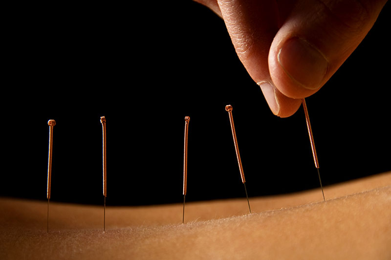 Acupuncture and Women's Health