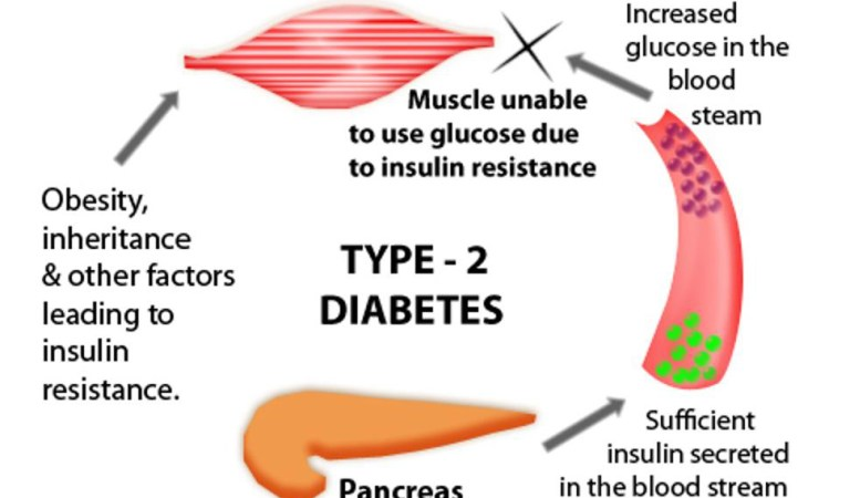 Researchers Claim To Have Found A Way To Reverse Type II Diabetes