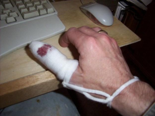 Bandaged thumb.
