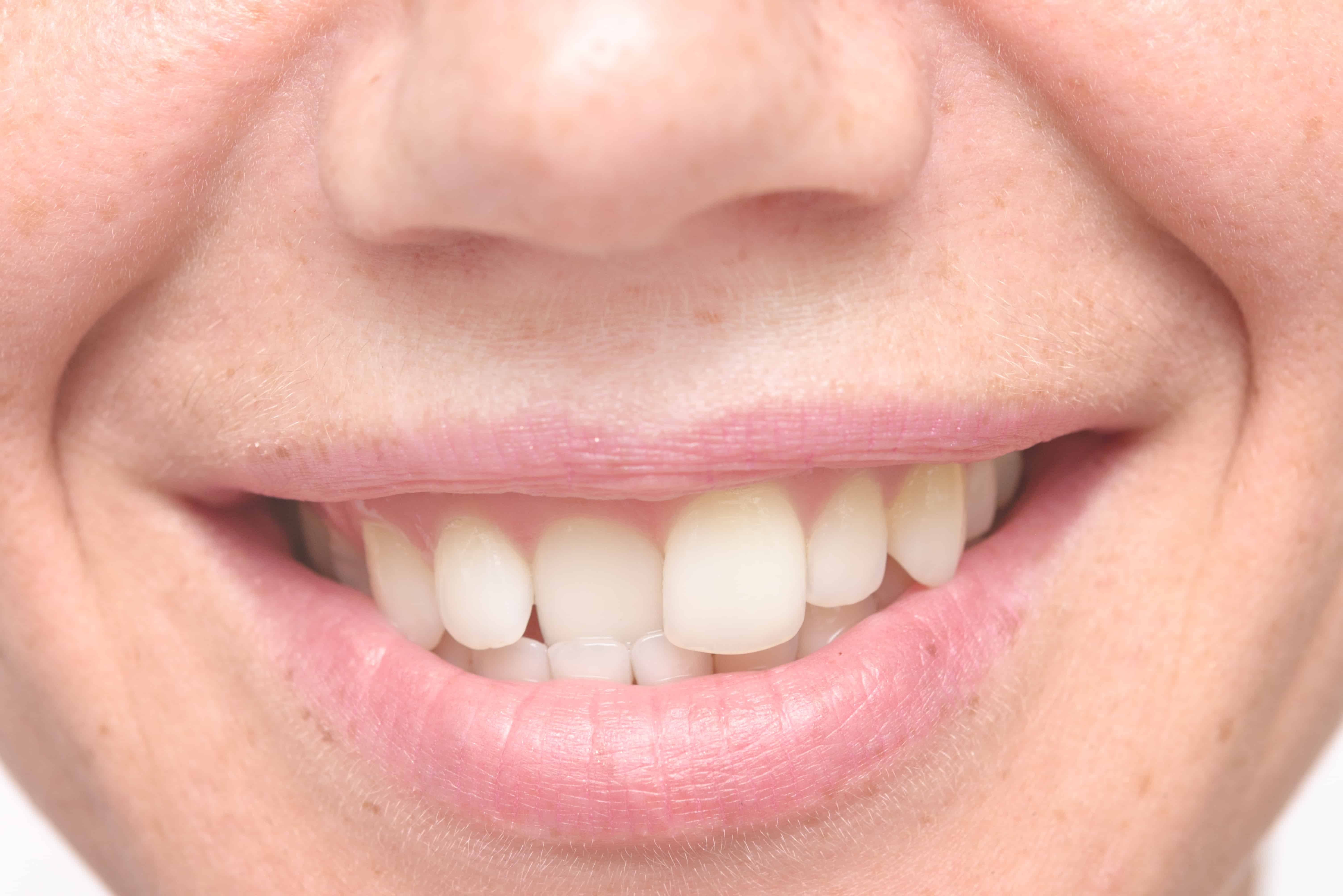 A Few Important Facts About Crooked Teeth | Woodland Hills CA