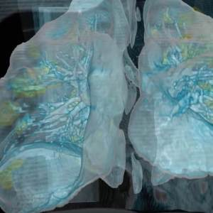Lung Damage from COVID-19