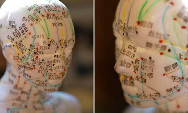 WA L&I  Acupuncture Pilot Project