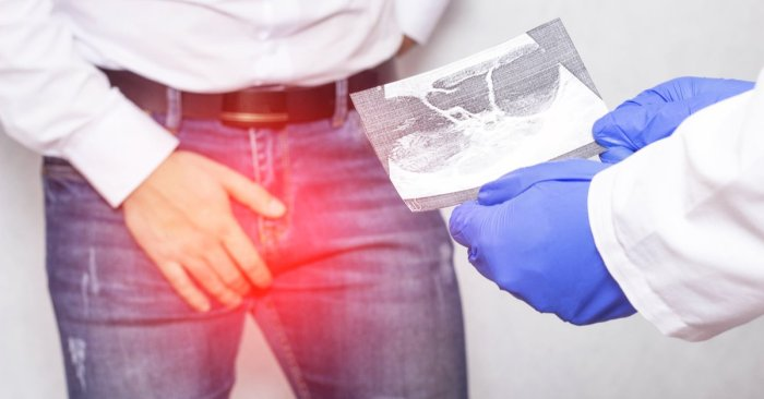 What Is a Testicular Ultrasound?