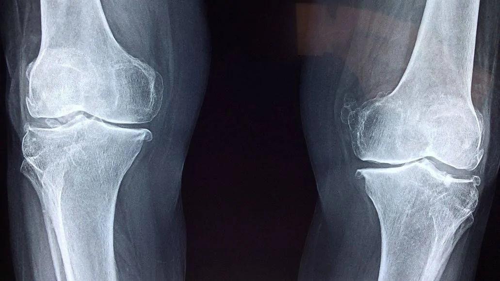 Leg injury x-ray