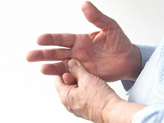 732x549_THUMBNAIL_Sprained_Finger