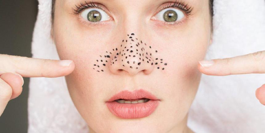 Чёрные точки. Как появляются черные точки на носу?