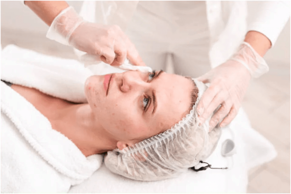 How Does Acne Scar Treatment Work? in 2021